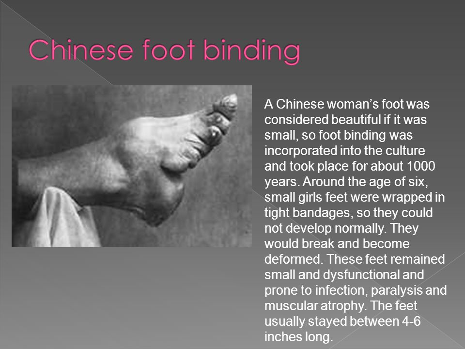 A Chinese womans foot was considered beautiful if it was small, so foot binding was incorporated into the culture and took place for about 1000 years.