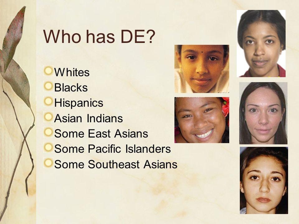 Who has DE? Whites Blacks Hispanics Asian Indians Some East Asians Some Pacific Islanders Some Southeast Asians