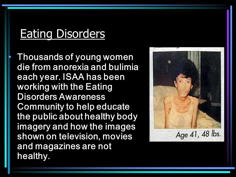 Celebrities Who Have Had Eating Disorders Mariah Carey – U.S.