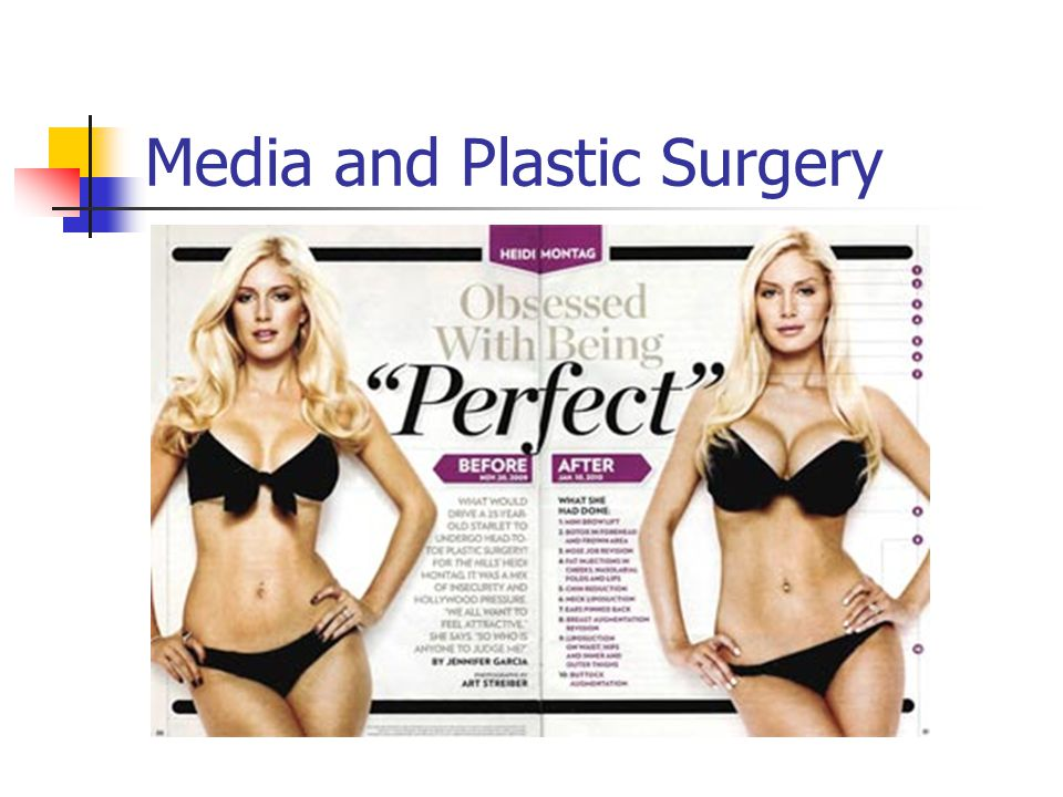 Media and Plastic Surgery