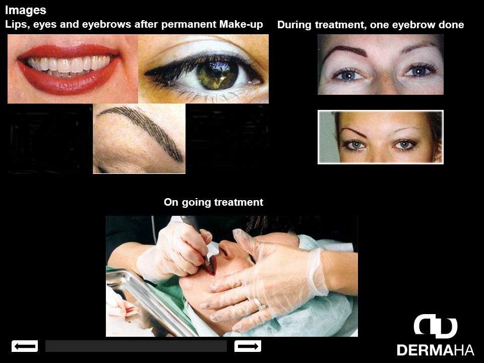 Images Lips, eyes and eyebrows after permanent Make-up During treatment, one eyebrow done On going treatment