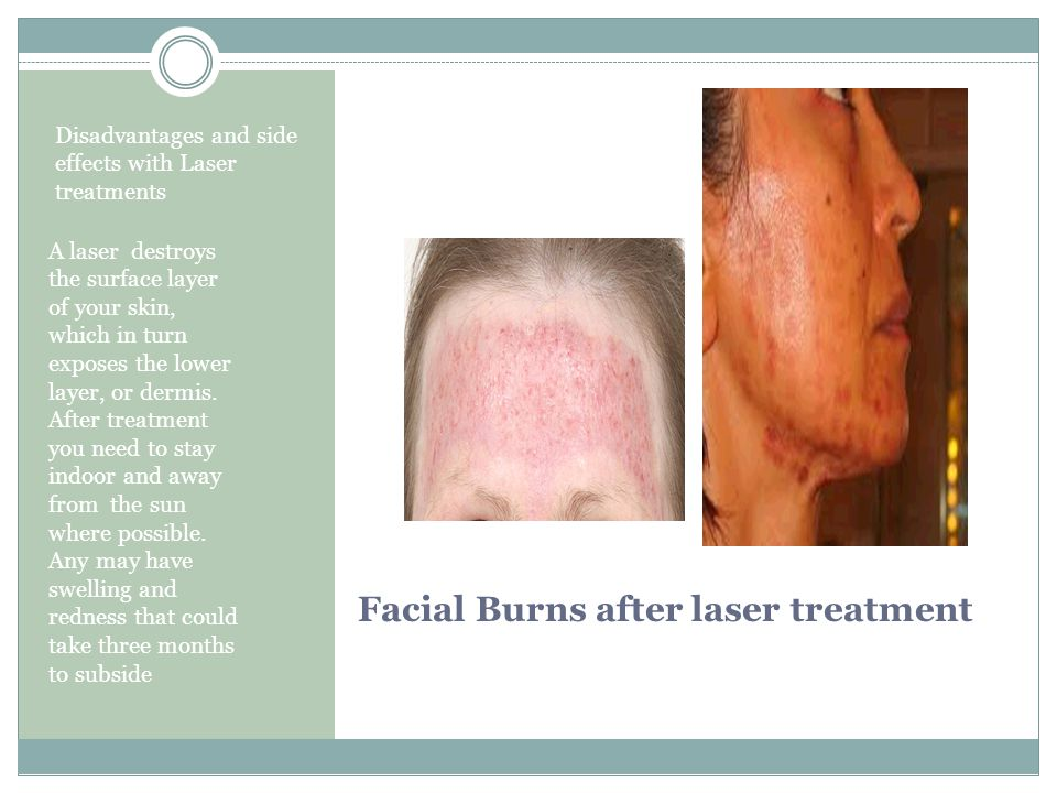 So whats it all about.Thread vein removal without the risk of laser or IPL.