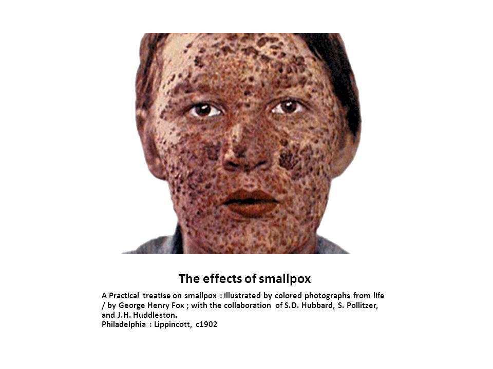 The effects of smallpox A Practical treatise on smallpox : illustrated by colored photographs from life / by George Henry Fox ; with the collaboration