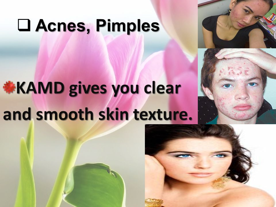 Acnes, Pimples KAMD gives you clear and smooth skin texture.