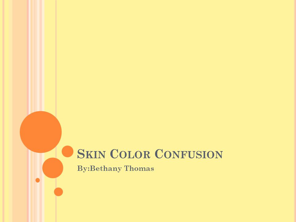 S KIN C OLOR C ONFUSION By:Bethany Thomas