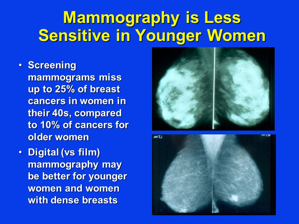 Mammography is Less Sensitive in Younger Women Screening mammograms miss up to 25% of breast cancers in women in their 40s, compared to 10% of cancers