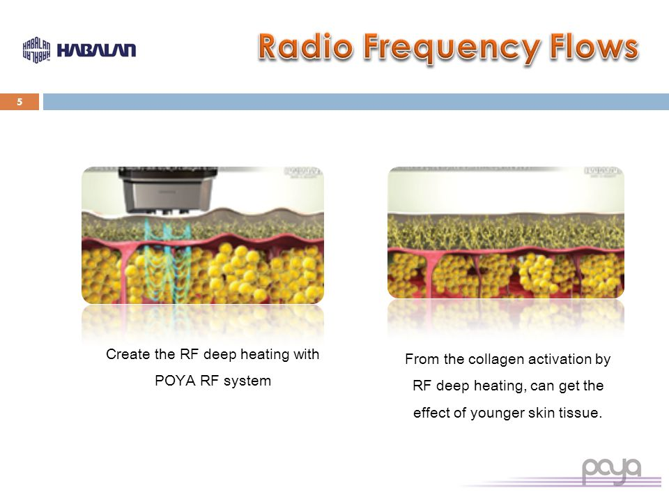 5 Create the RF deep heating with POYA RF system From the collagen activation by RF deep heating, can get the effect of younger skin tissue.