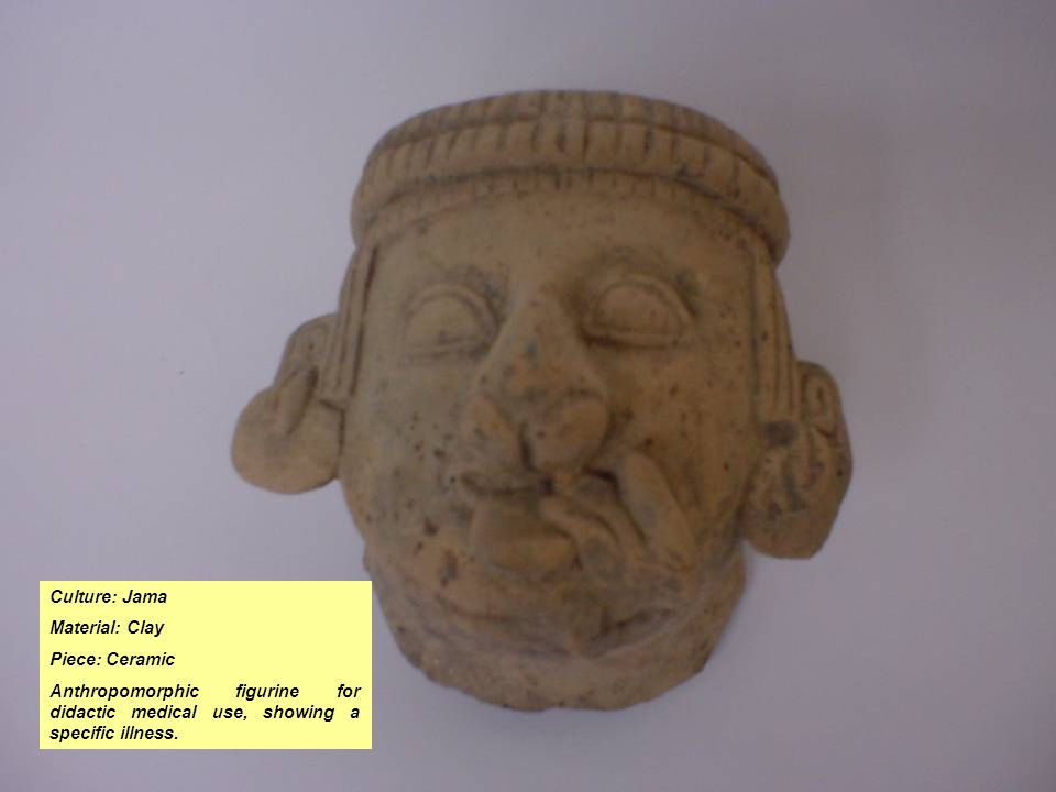 Culture: Jama Material: Clay Piece: Ceramic Anthropomorphic figurine for didactic medical use, showing a specific illness.