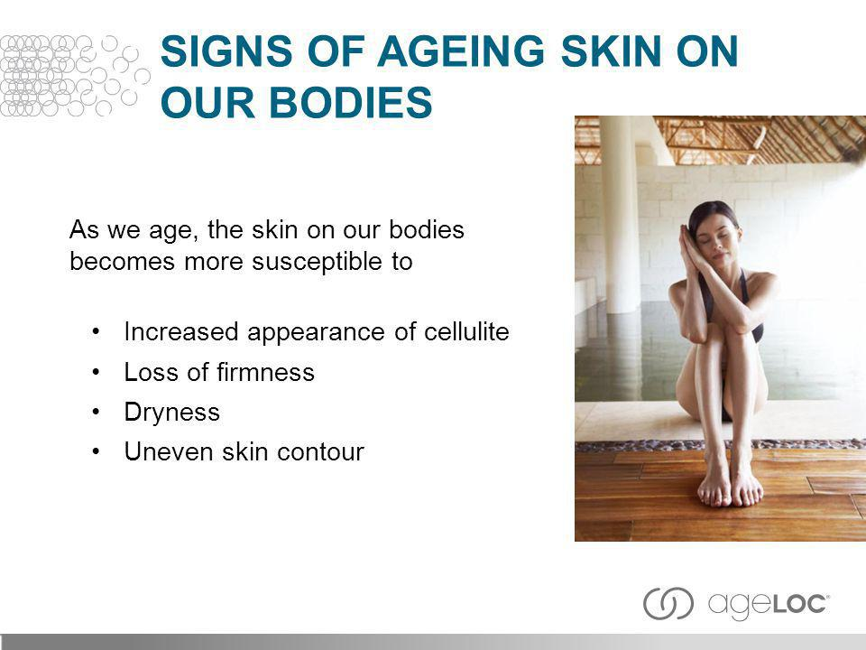 As we age, the skin on our bodies becomes more susceptible to Increased appearance of cellulite Loss of firmness Dryness Uneven skin contour SIGNS OF