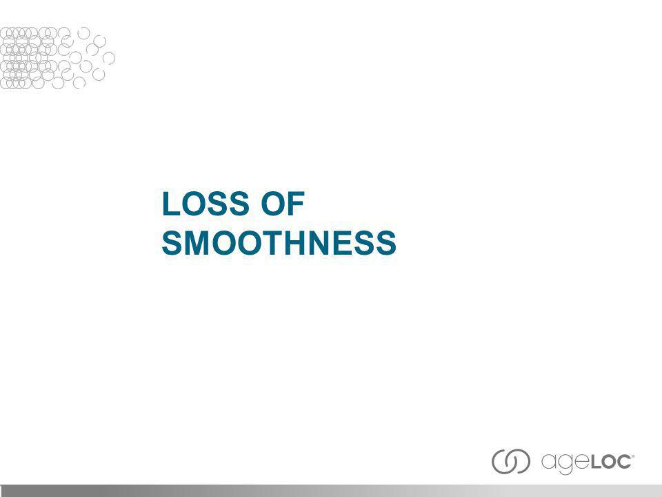 LOSS OF SMOOTHNESS