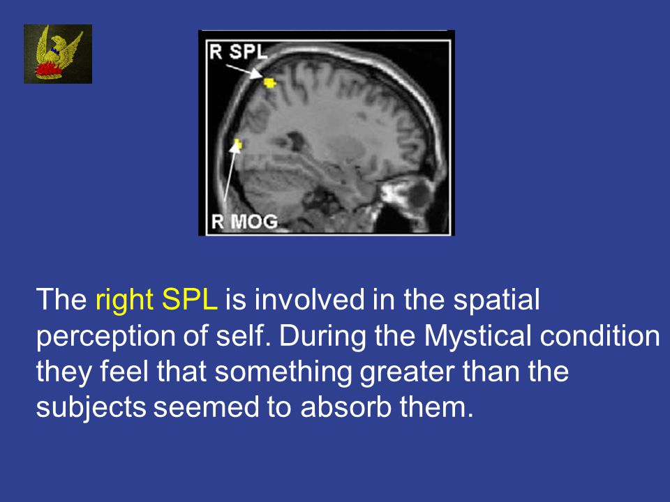 The right SPL is involved in the spatial perception of self.