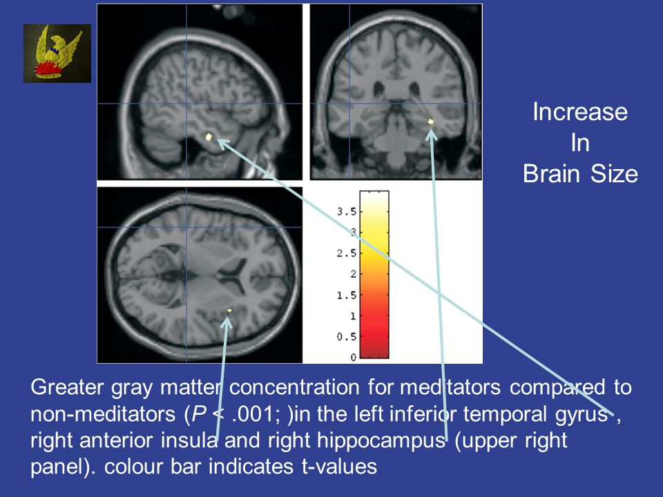 Greater gray matter concentration for meditators compared to non-meditators (P <.001; )in the left inferior temporal gyrus, right anterior insula and right hippocampus (upper right panel).