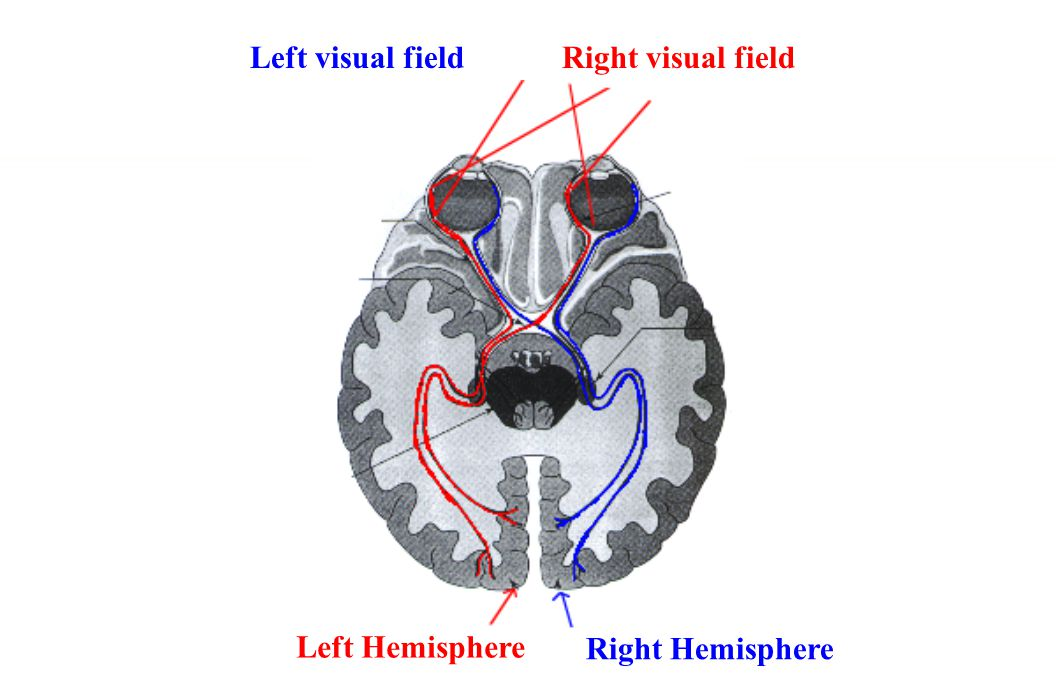 Right visual field Left Hemisphere Right Hemisphere Left visual field