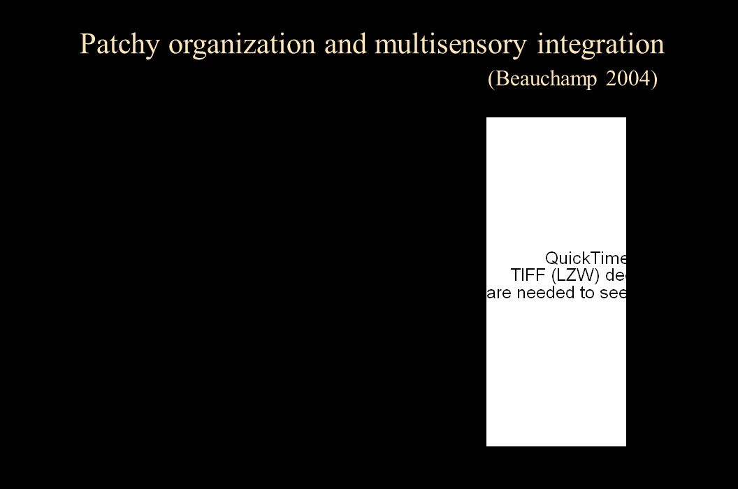 L RPost Ant L R Patchy organization and multisensory integration (Beauchamp 2004)