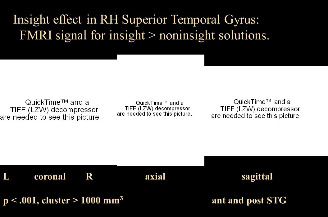 L RPost Ant L R Insight effect in RH Superior Temporal Gyrus: FMRI signal for insight > noninsight solutions. L coronal R axial sagittal p 1000 mm 3 a
