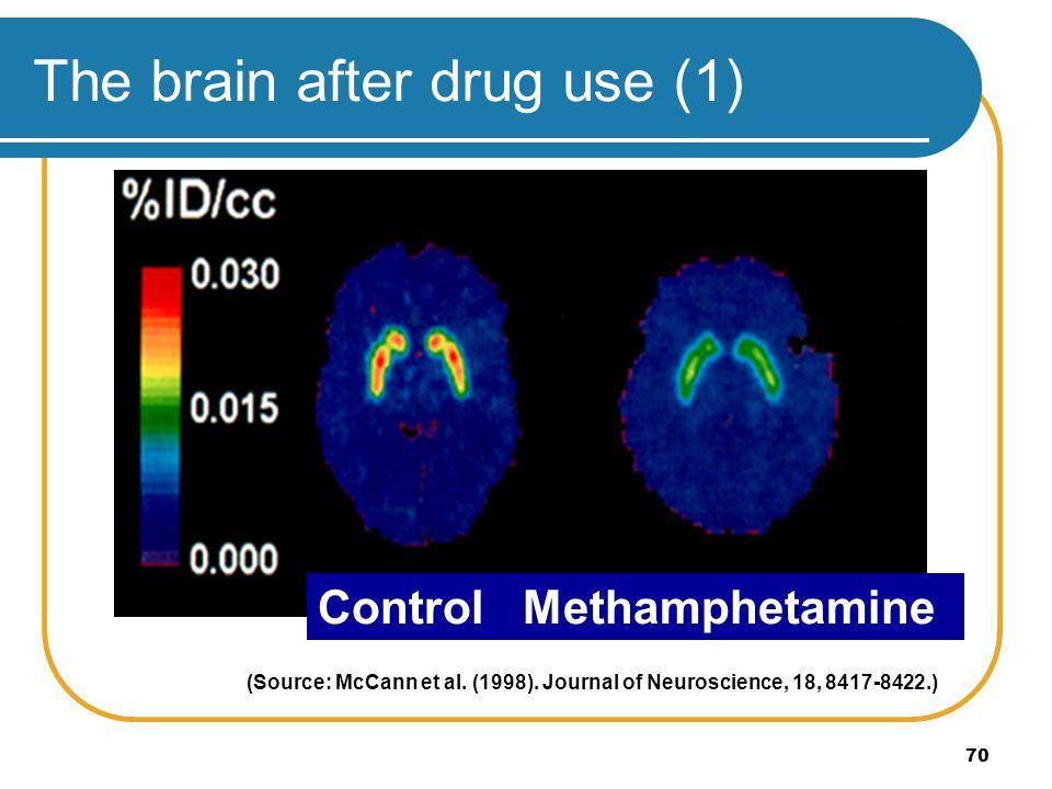 70 The brain after drug use (1) (Source: McCann et al. (1998). Journal of Neuroscience, 18, 8417-8422.) Control Methamphetamine