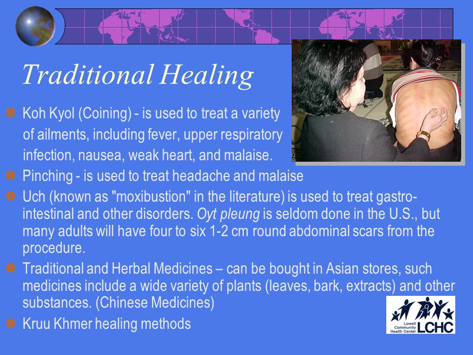 Traditional Healing Koh Kyol (Coining) - is used to treat a variety of ailments, including fever, upper respiratory infection, nausea, weak heart, and malaise.