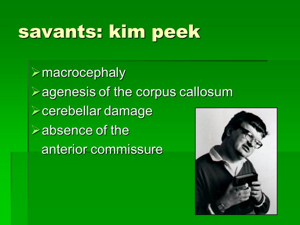 savants: kim peek macrocephaly macrocephaly agenesis of the corpus callosum agenesis of the corpus callosum cerebellar damage cerebellar damage absence of the absence of the anterior commissure anterior commissure