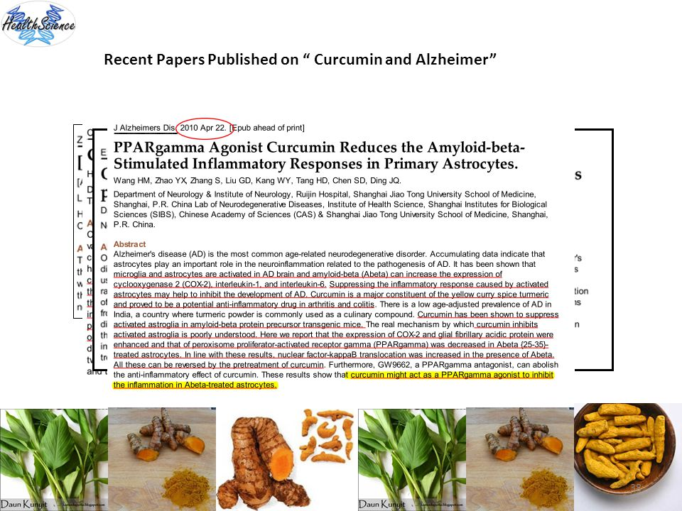 38 Recent Papers Published on Curcumin and Alzheimer