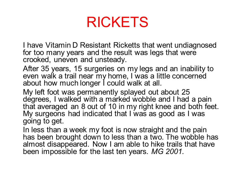 RICKETS I have Vitamin D Resistant Ricketts that went undiagnosed for too many years and the result was legs that were crooked, uneven and unsteady.