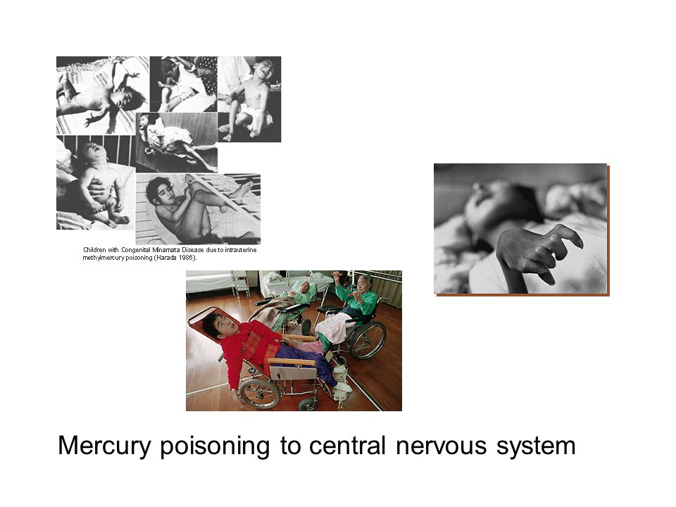 Mercury poisoning to central nervous system