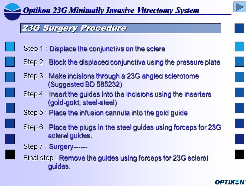 23G Surgery Procedure Step 1 : Displace the conjunctiva on the sclera Step 2 : Block the displaced conjunctiva using the pressure plate Step 3 : Make incisions through a 23G angled sclerotome (Suggested BD 585232) Step 4 : Insert the guides into the incisions using the inserters (gold-gold; steel-steel) Step 5 : Place the infusion cannula into the gold guide Step 6 : Place the plugs in the steel guides using forceps for 23G scleral guides.