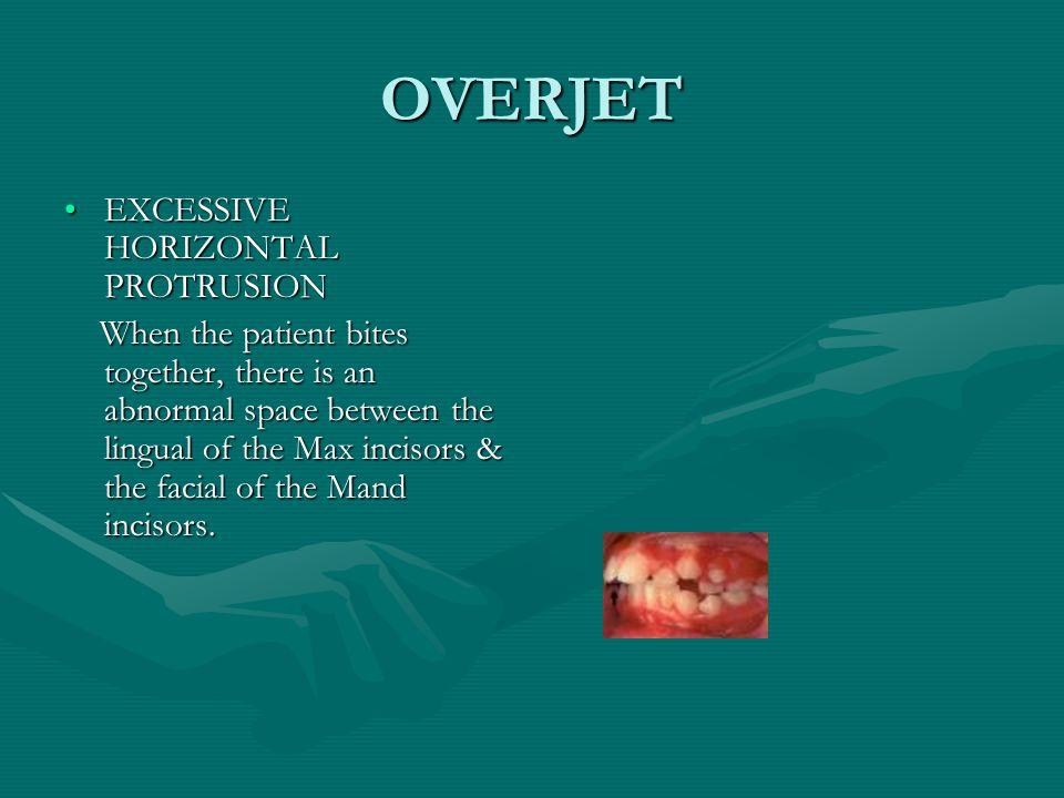 OVERBITE EXCESSIVE VERTICAL OVERLAPPINGEXCESSIVE VERTICAL OVERLAPPING Caused by the Max anterior teeth vertically overlapping the Mand anteriors.Caused by the Max anterior teeth vertically overlapping the Mand anteriors.