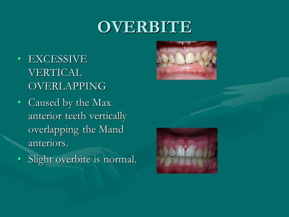 Microdontia Small TeethSmall Teeth
