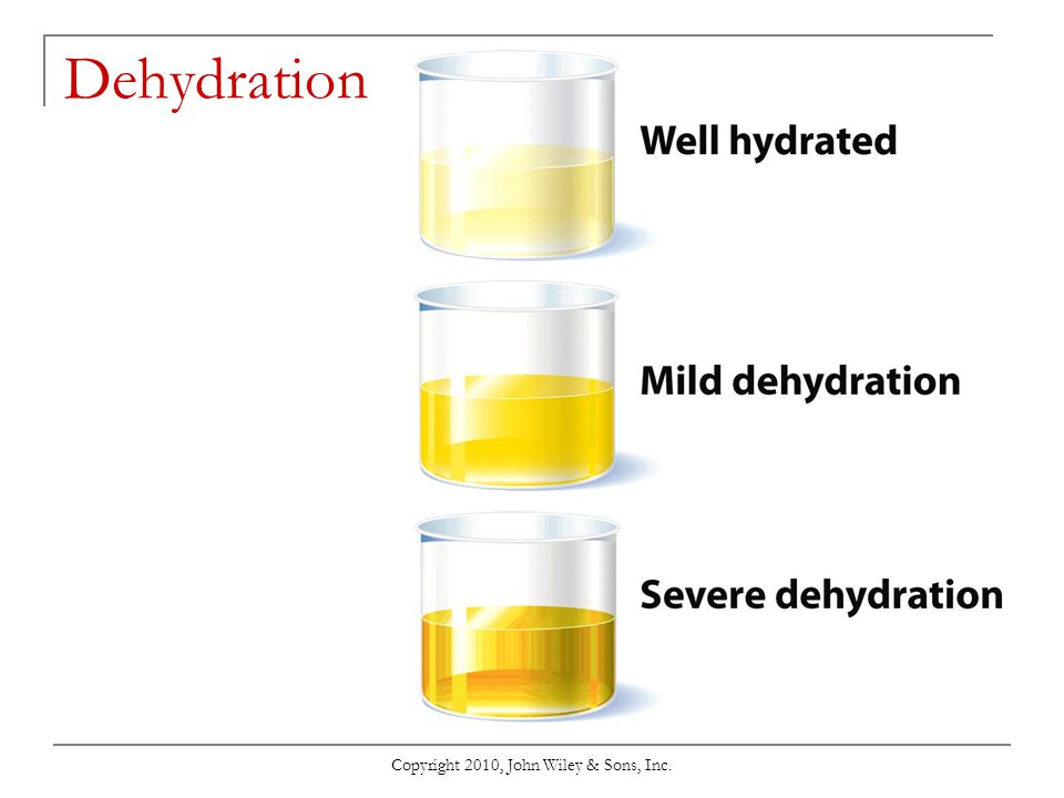 Copyright 2010, John Wiley & Sons, Inc. Water Intoxication