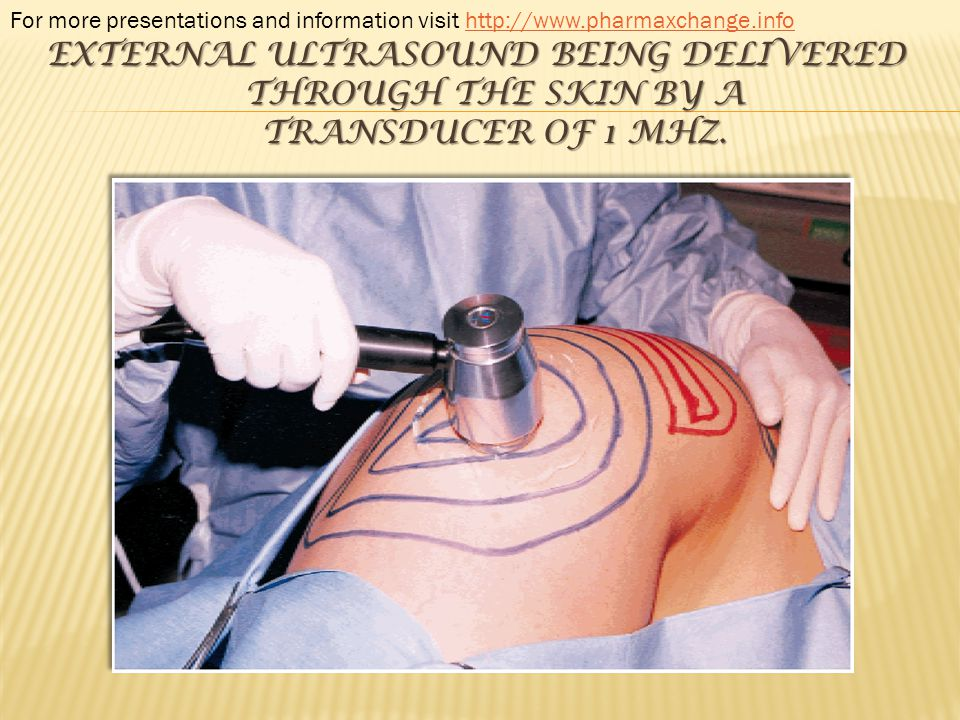 EXTERNAL ULTRASOUND BEING DELIVERED THROUGH THE SKIN BY A TRANSDUCER OF 1 MHZ. For more presentations and information visit http://www.pharmaxchange.i