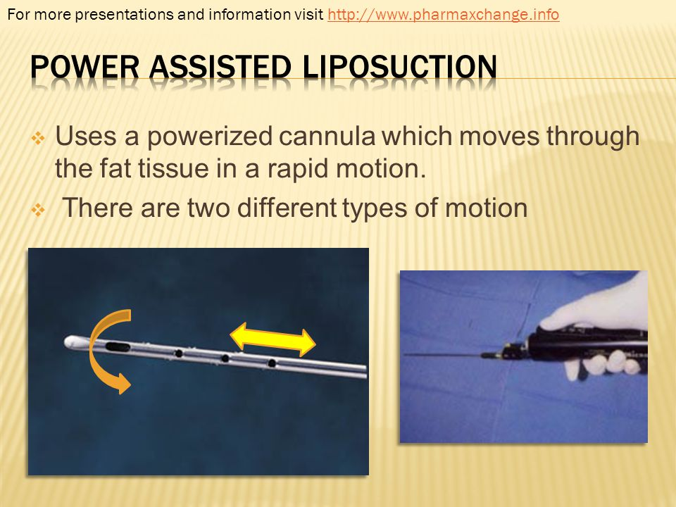 Uses a powerized cannula which moves through the fat tissue in a rapid motion. There are two different types of motion For more presentations and info