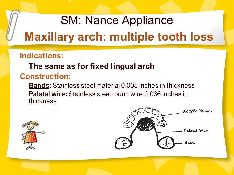 SM: Nance Appliance Maxillary arch: multiple tooth loss Indications: The same as for fixed lingual arch Construction: Bands: Stainless steel material