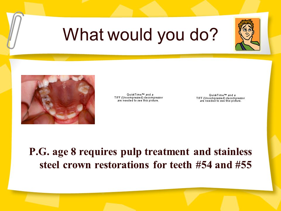 What would you do? P.G. age 8 requires pulp treatment and stainless steel crown restorations for teeth #54 and #55