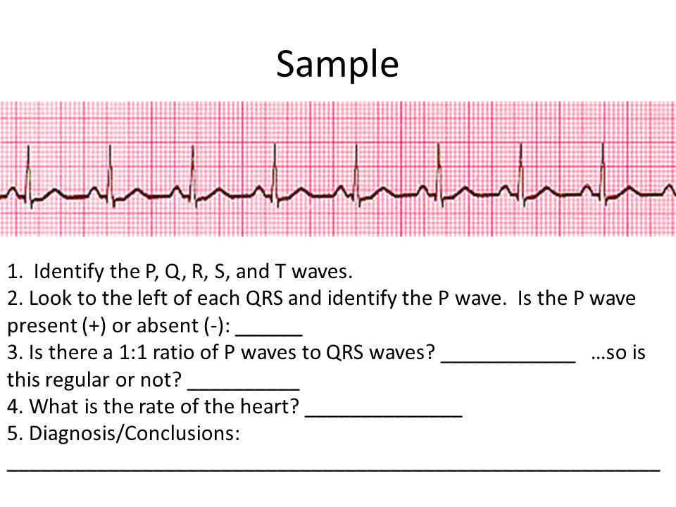 Sample 1. Identify the P, Q, R, S, and T waves. 2. Look to the left of each QRS and identify the P wave. Is the P wave present (+) or absent (-): ____