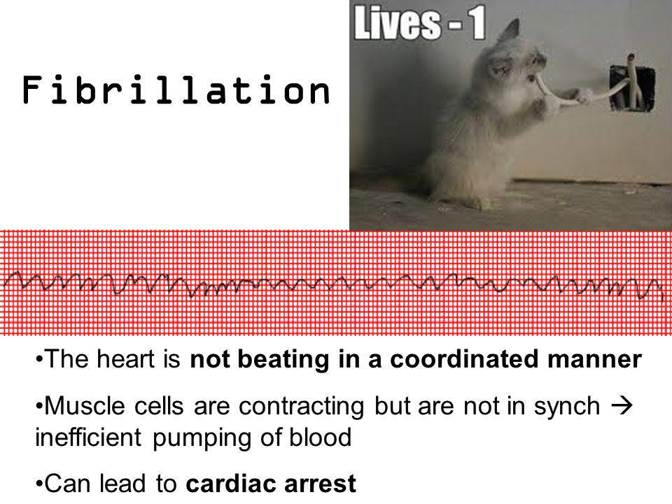 Fibrillation The heart is not beating in a coordinated manner Muscle cells are contracting but are not in synch inefficient pumping of blood Can lead
