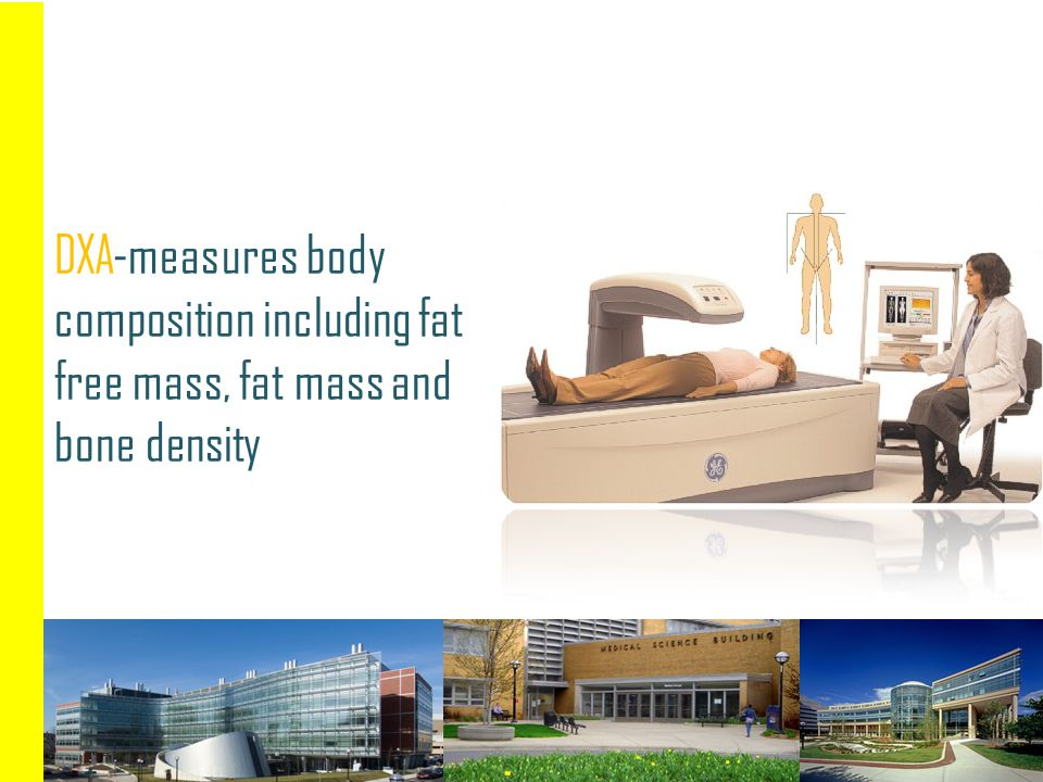 DXA-measures body composition including fat free mass, fat mass and bone density