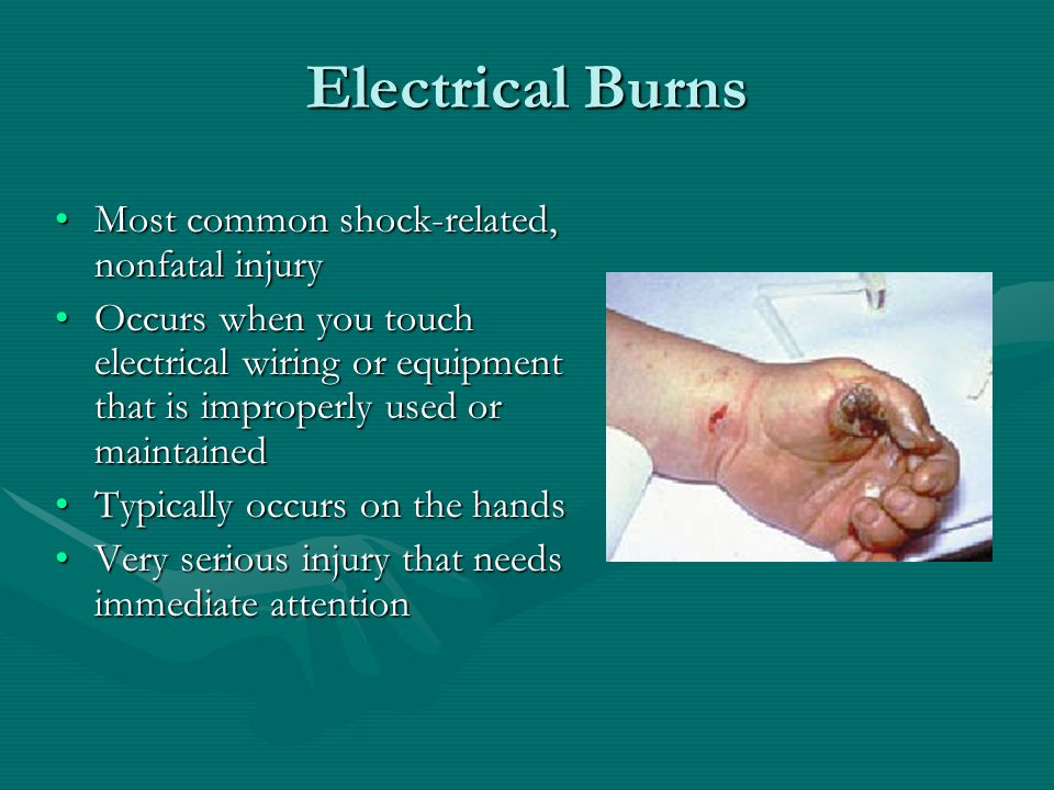 Electrical Burns Most common shock-related, nonfatal injuryMost common shock-related, nonfatal injury Occurs when you touch electrical wiring or equipment that is improperly used or maintainedOccurs when you touch electrical wiring or equipment that is improperly used or maintained Typically occurs on the handsTypically occurs on the hands Very serious injury that needs immediate attentionVery serious injury that needs immediate attention