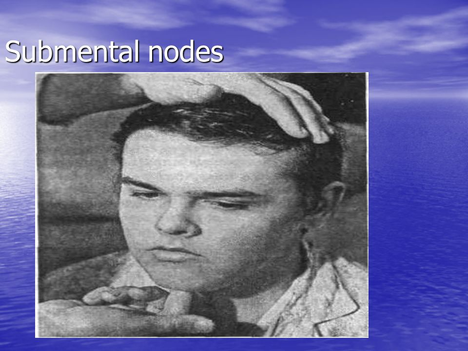 Submental nodes