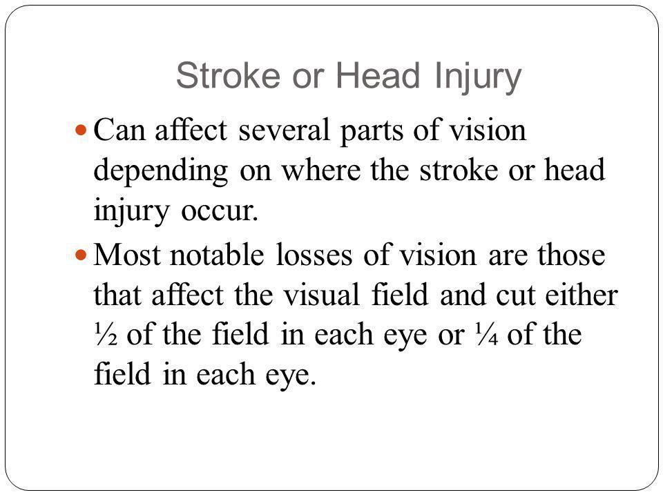 Stroke or Head Injury Can affect several parts of vision depending on where the stroke or head injury occur.