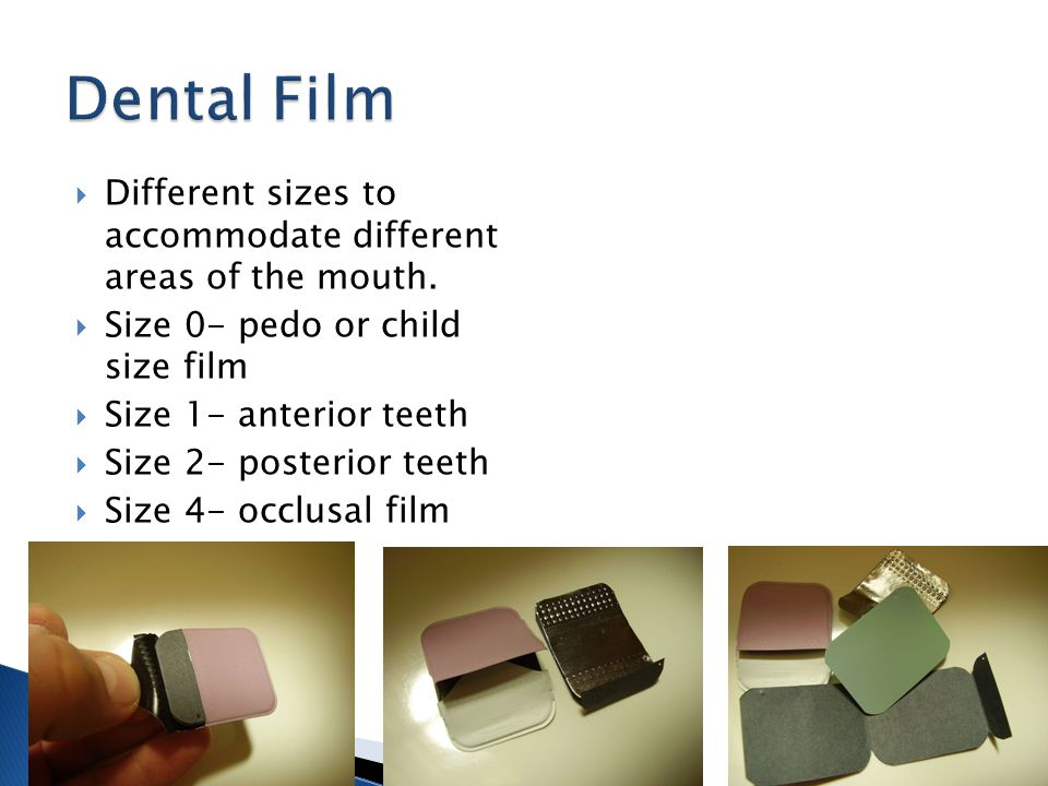 Different sizes to accommodate different areas of the mouth. Size 0- pedo or child size film Size 1- anterior teeth Size 2- posterior teeth Size 4- oc