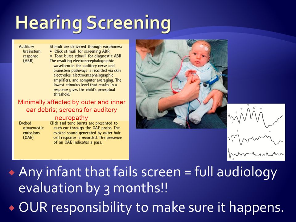 Any infant that fails screen = full audiology evaluation by 3 months!.