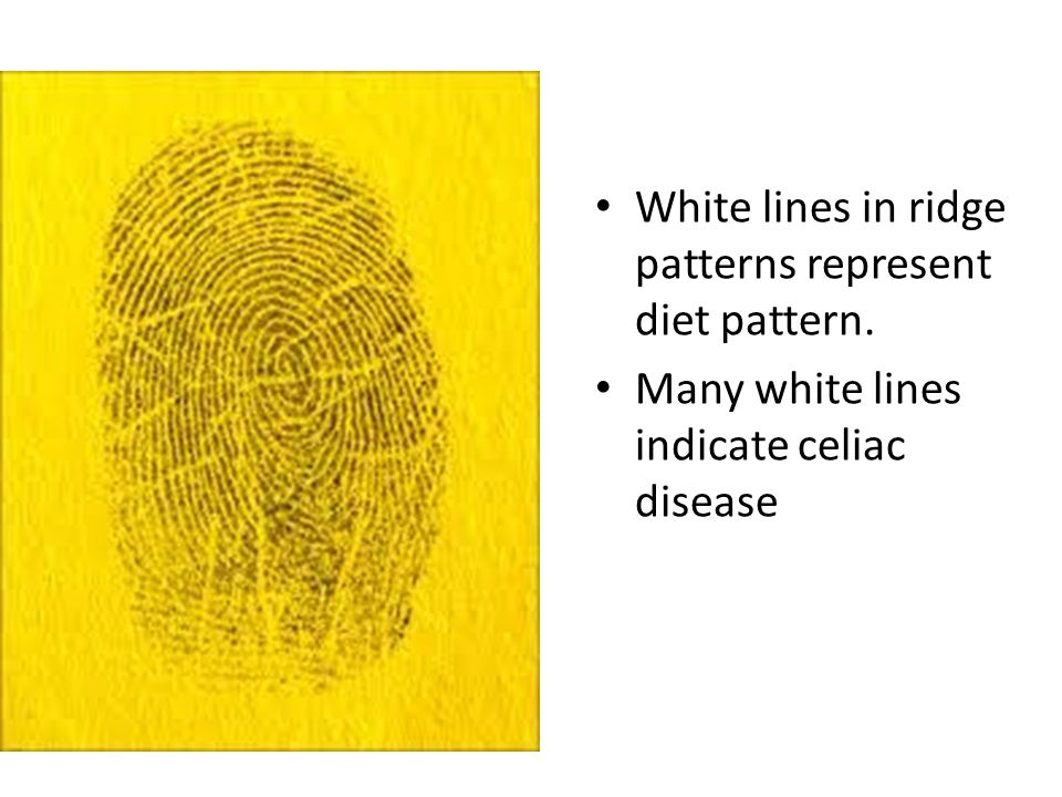 http://on.aol.com/video/how- to-determine-fingerprint- patterns-72416331 Kendall/Hunt Publishing Company35