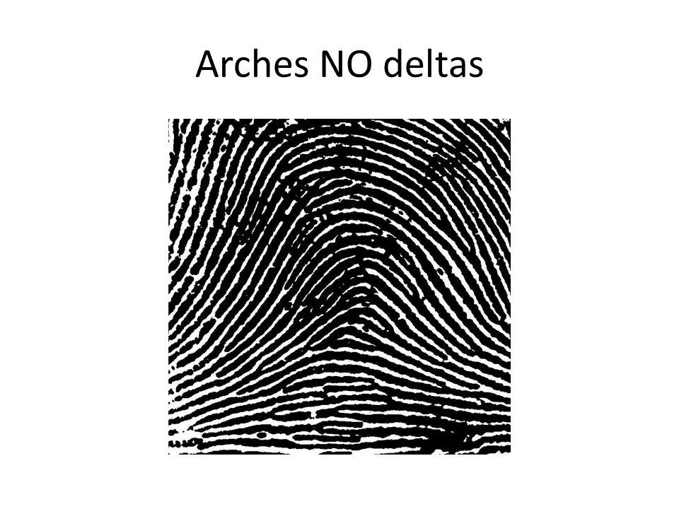 Whorls: 2 deltas