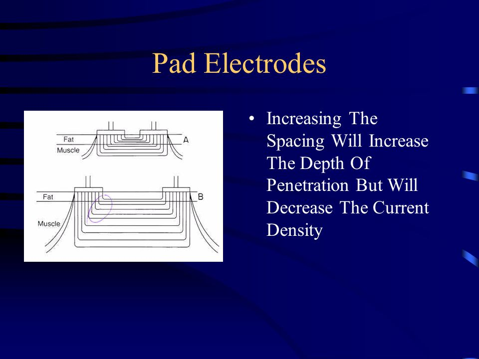 Pad Electrodes Increasing The Spacing Will Increase The Depth Of Penetration But Will Decrease The Current Density