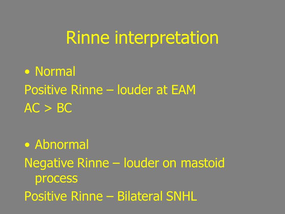 Rinne interpretation True Negative Rinne -Conductive Hearing loss -BC > AC False Negative Rinne - Severe S/N loss on test side = tone heard on contralateral side