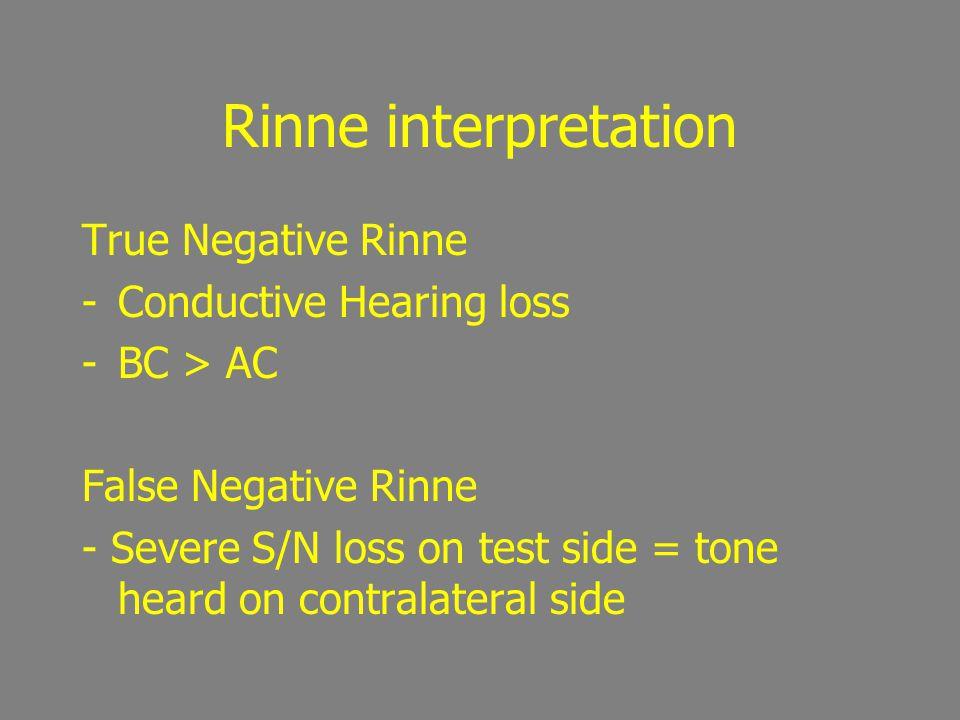 Rinne interpretation If Rinne Negative, masking is essential Types: Tragal Rub Baranay Noise Box
