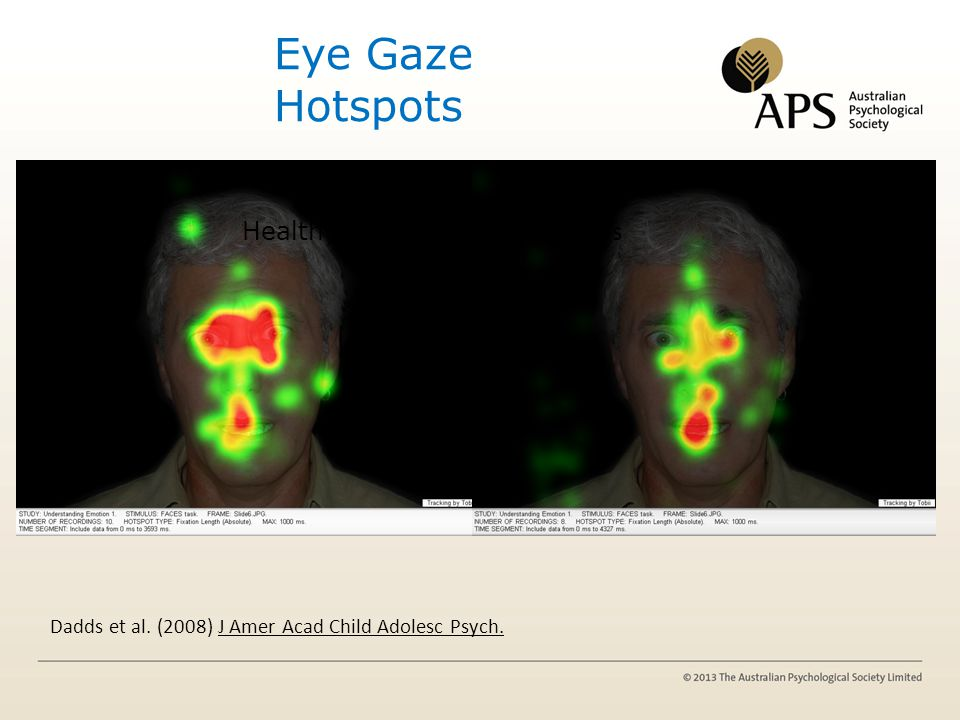 Eye Gaze Hotspots Cold conduct problems Healthy boys Hi CU boys Dadds et al. (2008) J Amer Acad Child Adolesc Psych.