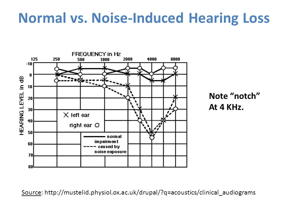 Normal vs. Noise-Induced Hearing Loss Source: http://mustelid.physiol.ox.ac.uk/drupal/?q=acoustics/clinical_audiograms Note notch At 4 KHz.