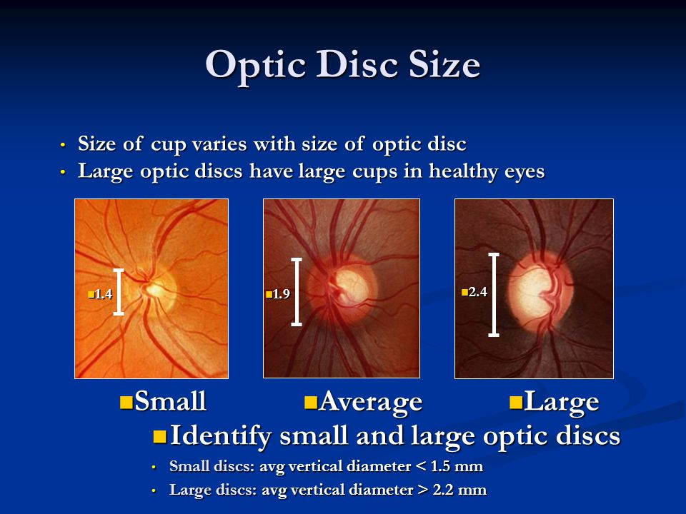 Identify small and large optic discs Identify small and large optic discs Small discs: avg vertical diameter < 1.5 mm Small discs: avg vertical diameter < 1.5 mm Large discs: avg vertical diameter > 2.2 mm Large discs: avg vertical diameter > 2.2 mm Average Average Large Large Size of cup varies with size of optic disc Size of cup varies with size of optic disc Large optic discs have large cups in healthy eyes Large optic discs have large cups in healthy eyes Small Small 1.4 1.4 1.9 1.9 2.4 2.4 Optic Disc Size