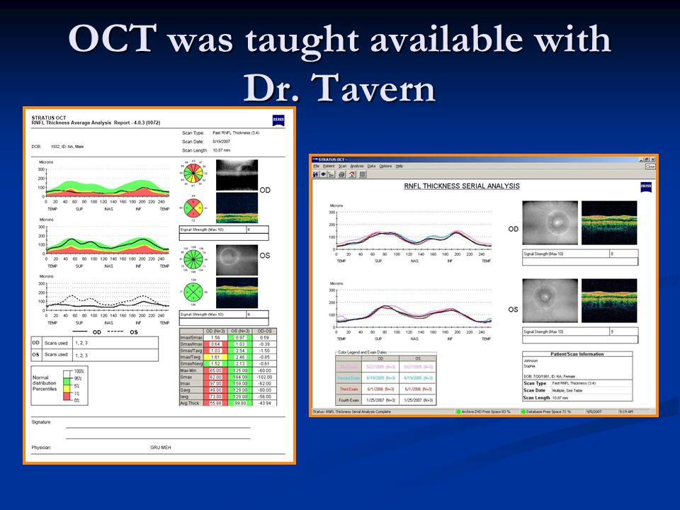 OCT was taught available with Dr. Tavern